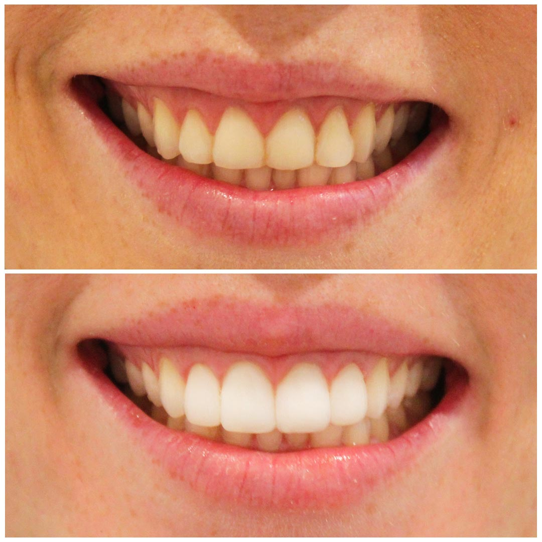 smiling dental gum lift before after 1 - A 10-Point Plan for  (Without Being Overwhelmed)