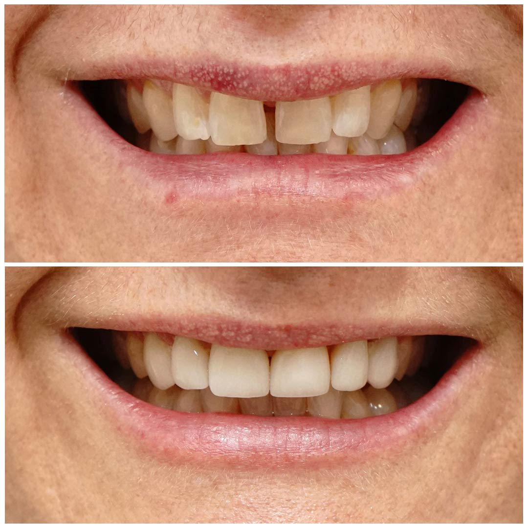 Porcelain Veneers Brisbane - Free Consults Available!  Smiling Dental
