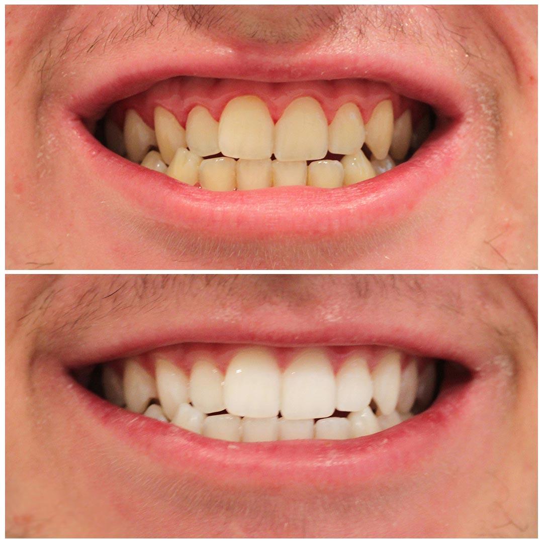 Before And After Dental Work Smiling Dental